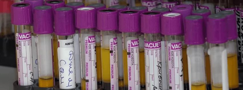 вакутейнеры коронавирус